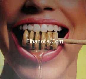أهم فوائد العسل على الفم والأسنان