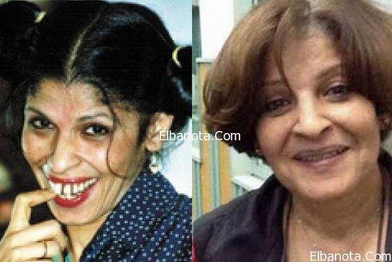 شاهد صور عائشة الكيلاني بعد عمليات التجميل